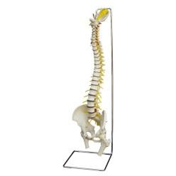 Wirbelsäule mit Bandscheibenvorfall / Anatomisches Modell